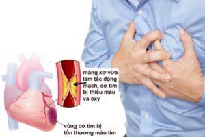 Bệnh máu nhiễm mỡ là căn bệnh thầm lặng